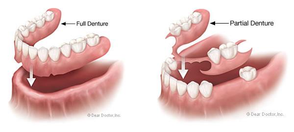 dentures2 - Starbrite Dental - Brampton