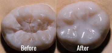 Dental Sealants - Starbrite Dental - Brampton
