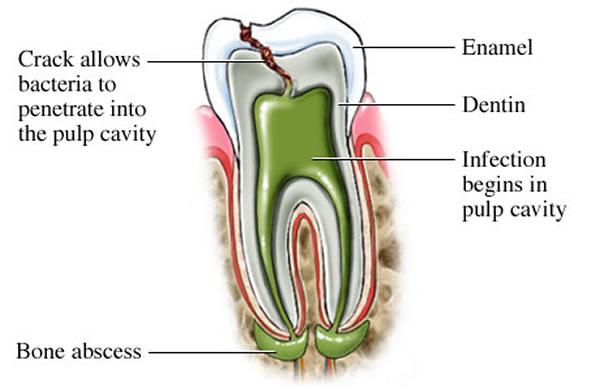 root canal - Starbrite Dental - Brampton