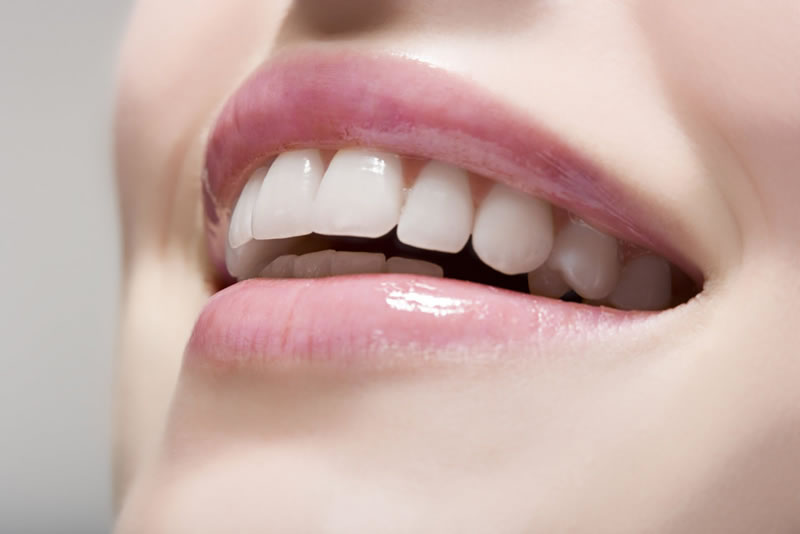cosmetic veneers - Starbrite Dental - Brampton