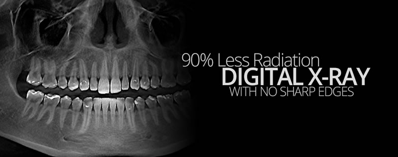 Digital X-Rays - Brampton - Starbrite Dental
